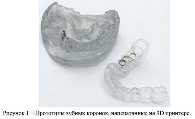 Рисунок 1 – Прототипы зубных коронок, напечатанные на 3D принтере.
